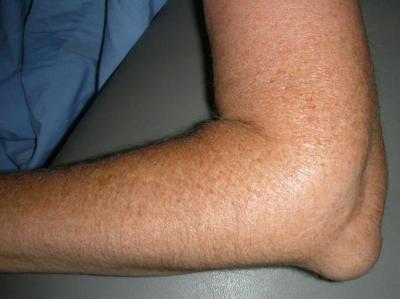 Изображение - Как долго болит ушиб локтевого сустава proxy?url=http%3A%2F%2Ffb.ru%2Fmisc%2Fi%2Fthumb%2Fa%2F1%2F5%2F4%2F3%2F4%2F8%2F6%2F1543486