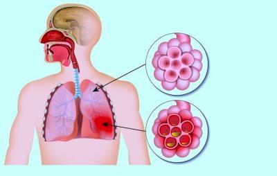 Изображение - Симптомы и эффективное лечение хламидийной пневмонии у детей proxy?url=http%3A%2F%2Ffb.ru%2Fmisc%2Fi%2Fthumb%2Fa%2F2%2F5%2F8%2F6%2F5%2F0%2F7%2F2586507