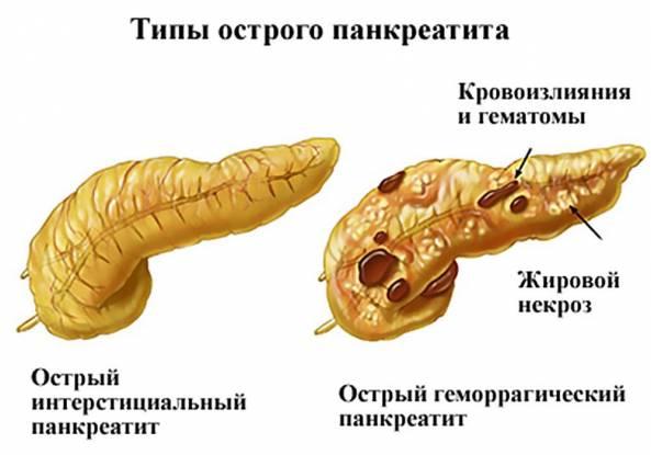 Изображение - Лечение острого панкреатита методы, диета и препараты proxy?url=http%3A%2F%2Fkiwka.ru%2Fwp-content%2Fuploads%2F2017%2F08%2F69c113e2ec16e222abc72d41c430eb59_593x415