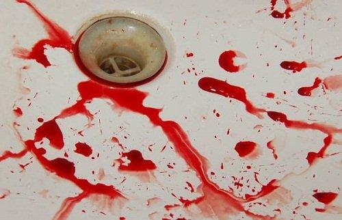 Изображение - Сонник кровь изо proxy?url=http%3A%2F%2Fladyelena.ru%2Fwp-content%2Fuploads%2F2016%2F08%2Fk-chemu-snitsya-idet-krov-1