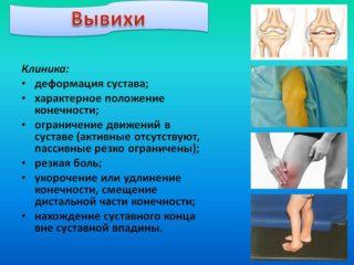 Изображение - Вывих коленного сустава мкб proxy?url=http%3A%2F%2Fneosensys.com%2Fwp-content%2Fuploads%2F2018%2F08%2F12ce4fe061a59e647e153aed1424fd88