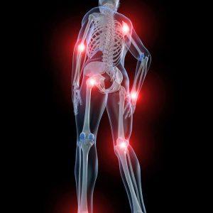Изображение - Воспаление суставов заболевание proxy?url=http%3A%2F%2Fokeydoc.ru%2Fwp-content%2Fuploads%2F2017%2F09%2F1-528-300x300