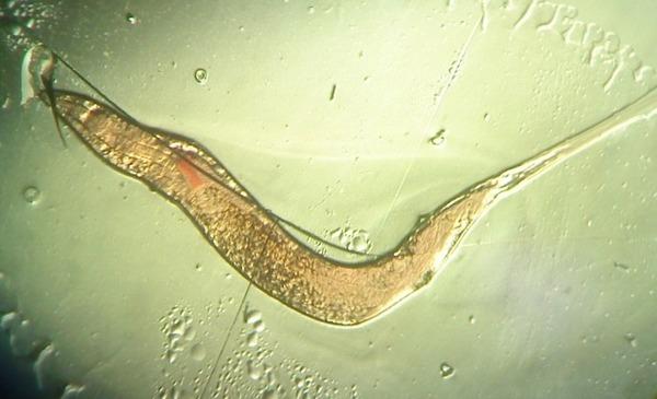 Изображение - Жизнедеятельность остриц как выглядят, что едят и как размножаются proxy?url=http%3A%2F%2Fotparazitoff.ru%2Fwp-content%2Fuploads%2F2017%2F08%2Fkak-vyglyadyat-ostricy