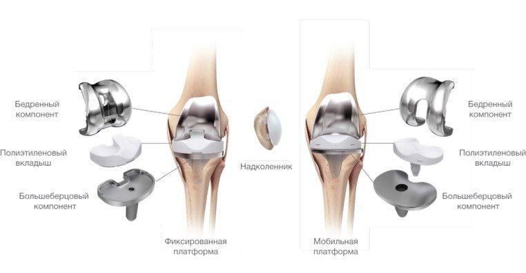 Изображение - Гонартроз коленного сустава повреждение мениска proxy?url=http%3A%2F%2Fsustavlive.ru%2Fwp-content%2Fuploads%2F2016%2F06%2Fgonartroz-eto