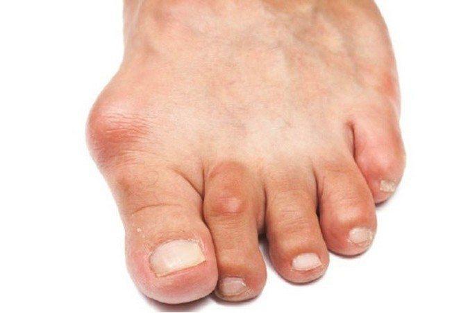 Изображение - Артроз мелких суставов ног proxy?url=http%3A%2F%2Fsustavlive.ru%2Fwp-content%2Fuploads%2F2016%2F07%2Fartroz-stopy-foto-simptomy-i-lechenie