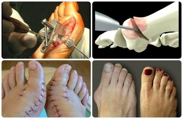 Изображение - Болит косточка на суставе ноги proxy?url=http%3A%2F%2Fsustavlive.ru%2Fwp-content%2Fuploads%2F2016%2F10%2FOper_Hallux_ver.1