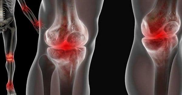 Изображение - Лечение суставов ног proxy?url=http%3A%2F%2Fsustavlive.ru%2Fwp-content%2Fuploads%2F2018%2F05%2Fbolyat-sustavy.-pomogut-naturalnye-sredstva