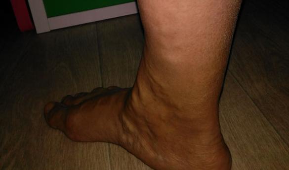 Изображение - Варикоз запущенные ноги proxy?url=http%3A%2F%2Fvarikoz24.com%2Fwp-content%2Fuploads%2F2017%2F03%2FImage-8