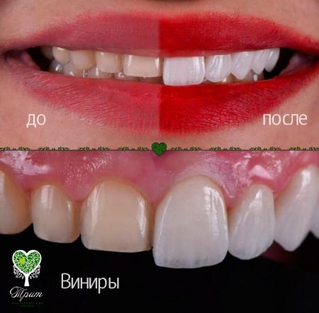 реставрация зубов винирами цены