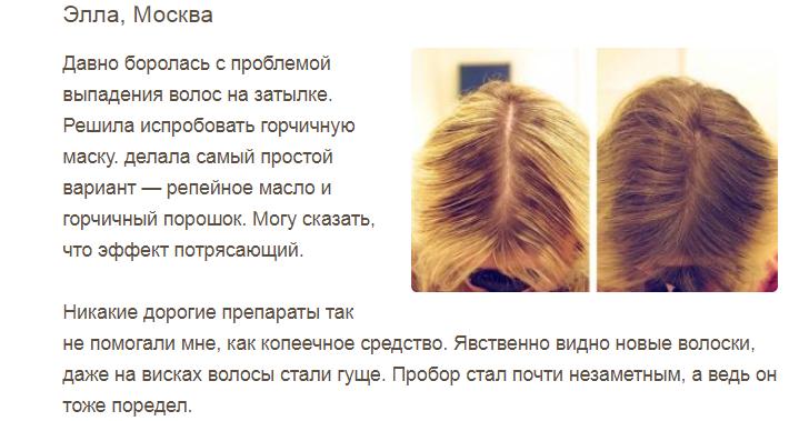 Изображение - Сколько отрастают волосы горчичной маски proxy?url=https%3A%2F%2F4.404content.com%2F1%2F55%2FAE%2F1483908742037898727%2Ffullsize