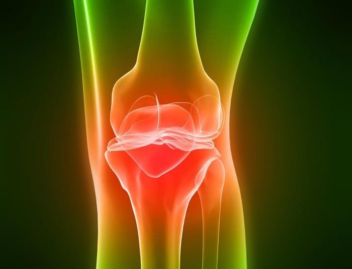 Изображение - Хондроз суставов симптомы proxy?url=https%3A%2F%2Fartritu.net%2Fwp-content%2Fuploads%2F2016%2F11%2Fhondroz_koleno