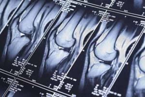 Изображение - Сколько делают мрт коленного сустава proxy?url=https%3A%2F%2Fdiet4health.ru%2Fwp-content%2Fuploads%2F2018%2F09%2F06571a027c7301c1892d1d8e44067728