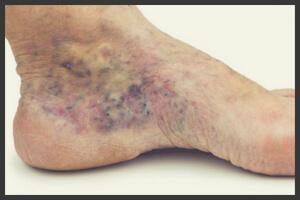 Изображение - Вены язвы на ногах лечение proxy?url=https%3A%2F%2Fdoctorvarikoz.ru%2Fwp-content%2Fuploads%2F2018%2F08%2F45_tro_1