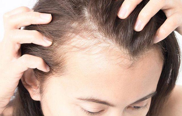 Изображение - На висках выпадают волосы proxy?url=https%3A%2F%2Ffoodinformer.ru%2Fwp-content%2Fuploads%2F2018%2F06%2Fviski