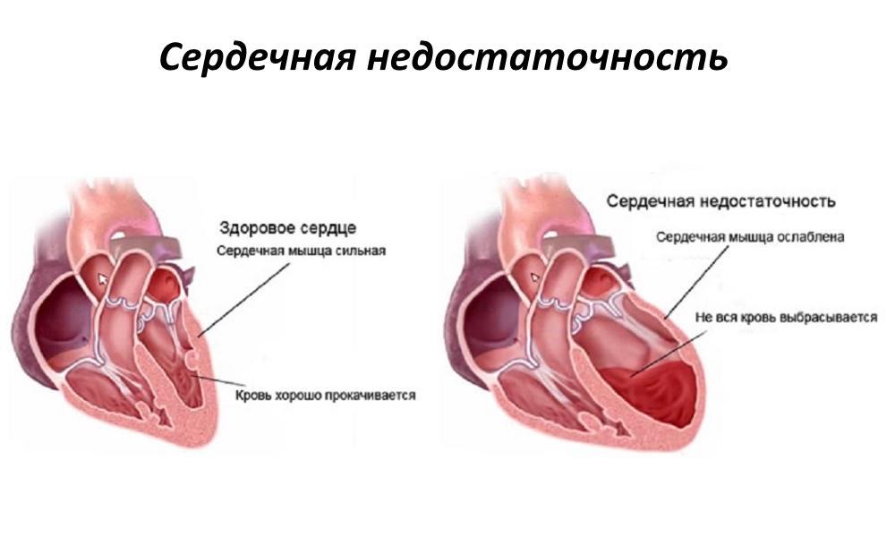 Изображение - Таблетки при сердечной недостаточности и высоком давлении proxy?url=https%3A%2F%2Fmed-explorer.ru%2Fwp-content%2Fuploads%2F2016%2F11%2F%25D0%25A1%25D0%25B5%25D1%2580%25D0%25B4%25D0%25B5%25D1%2587%25D0%25BD%25D0%25B0%25D1%258F-%25D0%25BD%25D0%25B5%25D0%25B4%25D0%25BE%25D1%2581%25D1%2582%25D0%25B0%25D1%2582%25D0%25BE%25D1%2587%25D0%25BD%25D0%25BE%25D1%2581%25D1%2582%25D1%258C-%25D1%2581%25D0%25B8%25D0%25BC%25D0%25BF%25D1%2582%25D0%25BE%25D0%25BC%25D1%258B-%25D0%25BB%25D0%25B5%25D1%2587%25D0%25B5%25D0%25BD%25D0%25B8%25D0%25B5-%25D1%2582%25D0%25B0%25D0%25B1%25D0%25BB%25D0%25B5%25D1%2582%25D0%25BA%25D0%25B8-1