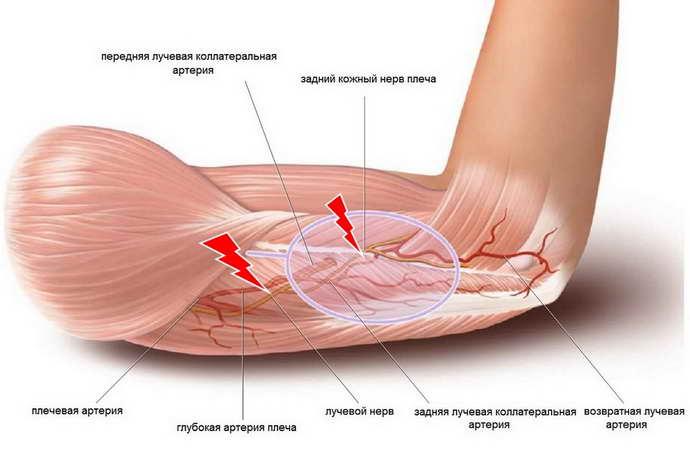 Изображение - Плечевой сустав лечение защемления proxy?url=https%3A%2F%2Fnevrology.net%2Fwp-content%2Fuploads%2F2018%2F08%2Fzashhemlenie-nerva-v-plechevom-sustave-simptomy-i-lechenie-11