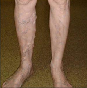 Изображение - Вены на ногах выступают какой врач proxy?url=https%3A%2F%2Fnoginashi.ru%2Fwp-content%2Fuploads%2F2018%2F01%2Fvystupayut-veny-na-noge3-e1496395755373