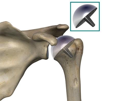 Изображение - Ночью болят плечевые суставы proxy?url=https%3A%2F%2Fortocure.ru%2Fwp-content%2Fuploads%2F2017%2F10%2Fendoprotezirvoanie-plecha