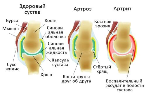 Изображение - Питание при больных суставах ног proxy?url=https%3A%2F%2Fortocure.ru%2Fwp-content%2Fuploads%2F2018%2F04%2Fartroz-i-artrit-sustavov
