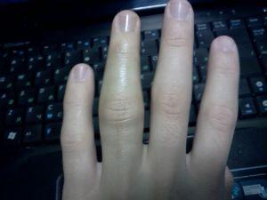 Изображение - Опух сустав пальца на руке после удара proxy?url=https%3A%2F%2Fosteocure.ru%2Fwp-content%2Fuploads%2F2014%2F08%2Fuhib-palca-ruki