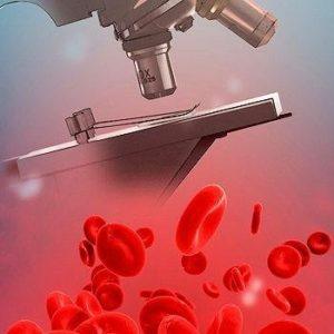 Изображение - Анализы крови при панкреатите изменение показателей proxy?url=https%3A%2F%2Fpankreatit03.ru%2Fwp-content%2Fuploads%2F2017%2F06%2Fkliniceskiy_krovi-300x300