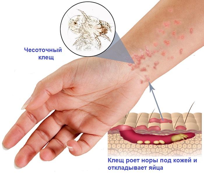 Изображение - Как лечить чесотку и чесоточного клеща у человека proxy?url=https%3A%2F%2Fprusakam.net%2Fwp-content%2Fuploads%2F2018%2F04%2F5-15