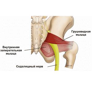 Изображение - Боль в мышцах тазобедренного сустава лечение proxy?url=https%3A%2F%2Frevmatolog.org%2Fwp-content%2Fuploads%2F2018%2F07%2F65037_bol-v-bedrennoj-myshtse-prichiny2