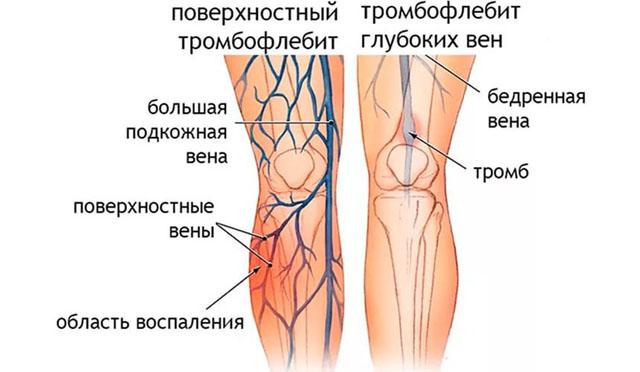 Изображение - Тромб в вене на ноге симптомы proxy?url=https%3A%2F%2Fritmserdca.ru%2Fwp-content%2Fuploads%2F2017%2F06%2Ftromboflebit