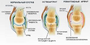 Изображение - Беспокоят коленные суставы proxy?url=https%3A%2F%2Fskeletopora.ru%2Fwp-content%2Fauploads%2F336575%2Frevmatoidnyy_artrit