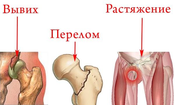 Изображение - После травмы тазобедренного сустава proxy?url=https%3A%2F%2Fskeletopora.ru%2Fwp-content%2Fuploads%2F2018%2F05%2FTravmy