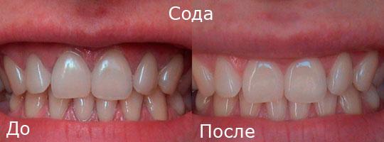 Изображение - Как правильно чистить зубы содой для отбеливания без вреда proxy?url=https%3A%2F%2Fstomaget.ru%2Fwp-content%2Fuploads%2FZuby-do-i-posle-chistki-sodoj