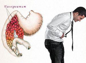 Изображение - Панкреатогенный сахарный диабет proxy?url=https%3A%2F%2Fudiabetika.ru%2Fwp-content%2Fuploads%2F2018%2F02%2Fpankreatit-1-300x222