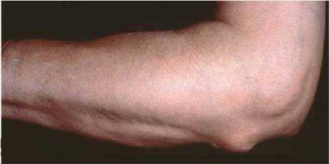 Изображение - Ортопедическая повязка на локтевой сустав proxy?url=https%3A%2F%2Fvash-ortoped.com%2Fwp-content%2Fuploads%2F2018%2F07%2Frevmatoidnyy-artrit-480x239